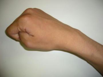 あざのある腕