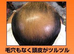 毛穴のないツルツルの頭皮