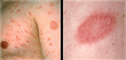 ジベルばら色粃糠疹症状・写真・原因・治療| 症状写真でわかる