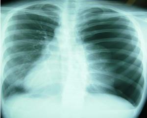 spontaneous_pneumothorax.jpg