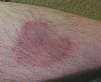 ライム病で炎症を起こした皮膚