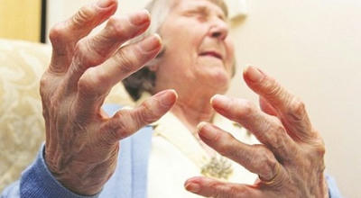 Mức độ nguy hiểm của bệnh viêm khớp dạng thấp