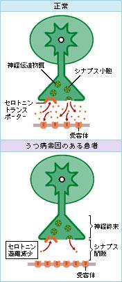 セニトロンとカンナビノイド