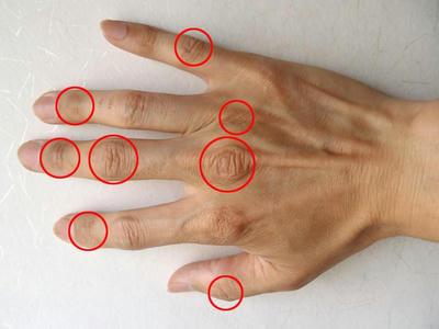 指の関節部手の甲側。治った汗疱の場所