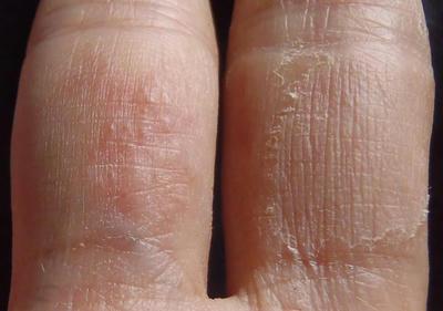 薬指手のひら側にでき始めた汗疱と、中指手のひら側の治った汗疱