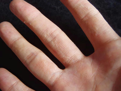 汗疱の治った痕。手のひら側の指