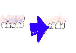 歯の健康図
