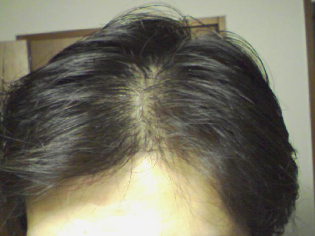 【薄毛対策】髪にいい食べ物|髪の毛を増やす方法