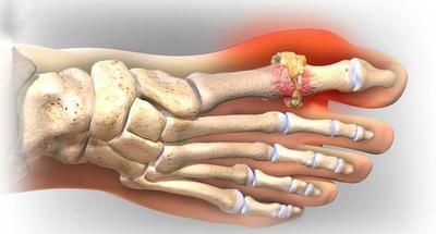 Gout là bệnh như thế nào ?