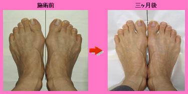 手術なしで簡単に外反母趾を治す方法