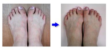 自宅で簡単に治せる外反母趾改善法