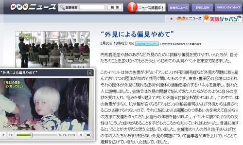 アルビノ NHK ニュース7