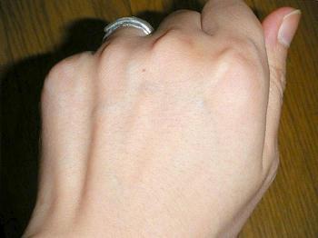 普段の手の甲