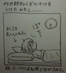 横を向くとなんとなくほっぺが痛かったので、できるだけあおむけで寝るよう努力しました。