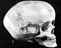 250px-Hydrocephalic_skull.jpg
