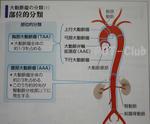 大動脈瘤の部位による分類