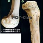 膝の内側側副靭帯(medial collateral ligament:MCL)の付着部