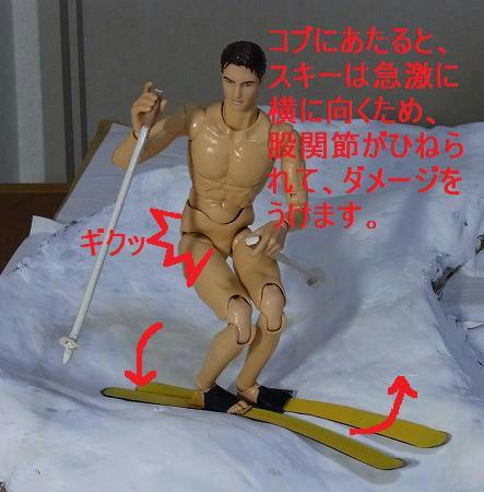 コブにぶるかるとスキーが急激に横になる