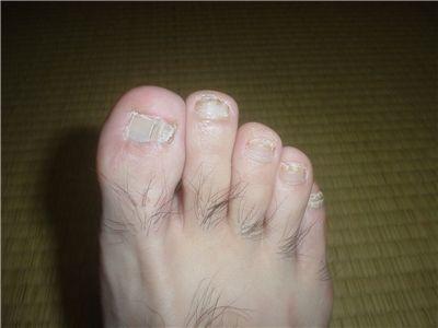 爪水虫治療中の右足