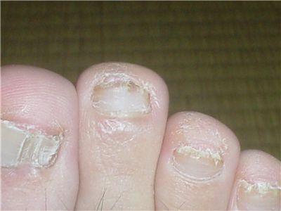 爪水虫治療中の右足中指