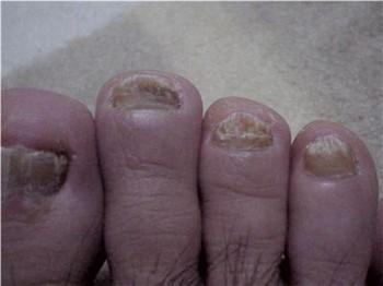 治療前の爪(爪水虫)