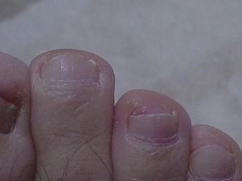 治療後の爪