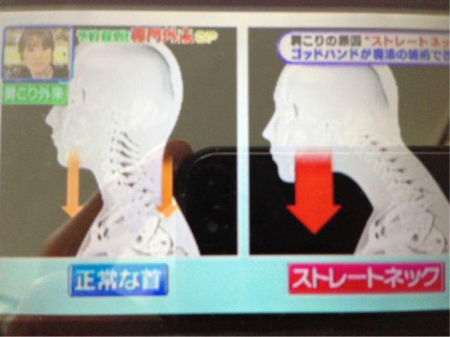 枕 なし ネック ストレート 【ストレートネックの治し方】首や肩の痛みは「スマホ首」が原因だった!